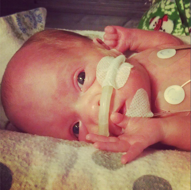 Madeleine, pre-surgery, at almost seven weeks
